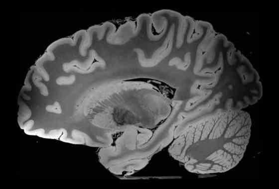Mira y escucha el cerebro humano como nunca antes lo habías experimentado