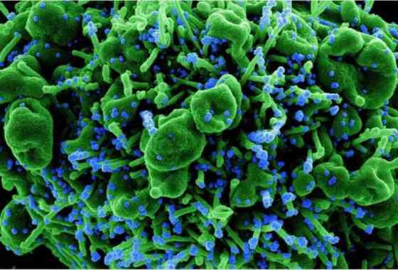 Anticuerpo de segunda generación protege del SARS-CoV-2, sus variantes y evita que mute para resistir la terapia